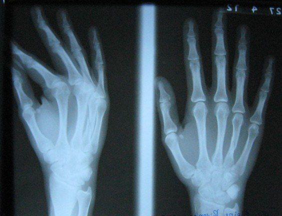 Julie's Broken Hand
